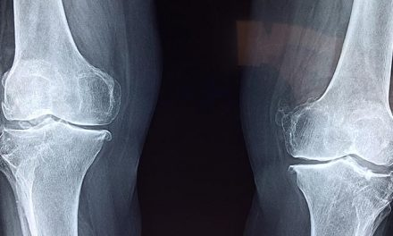 Study Points to Benefits of Knee Replacement Surgery Over Therapy Alone